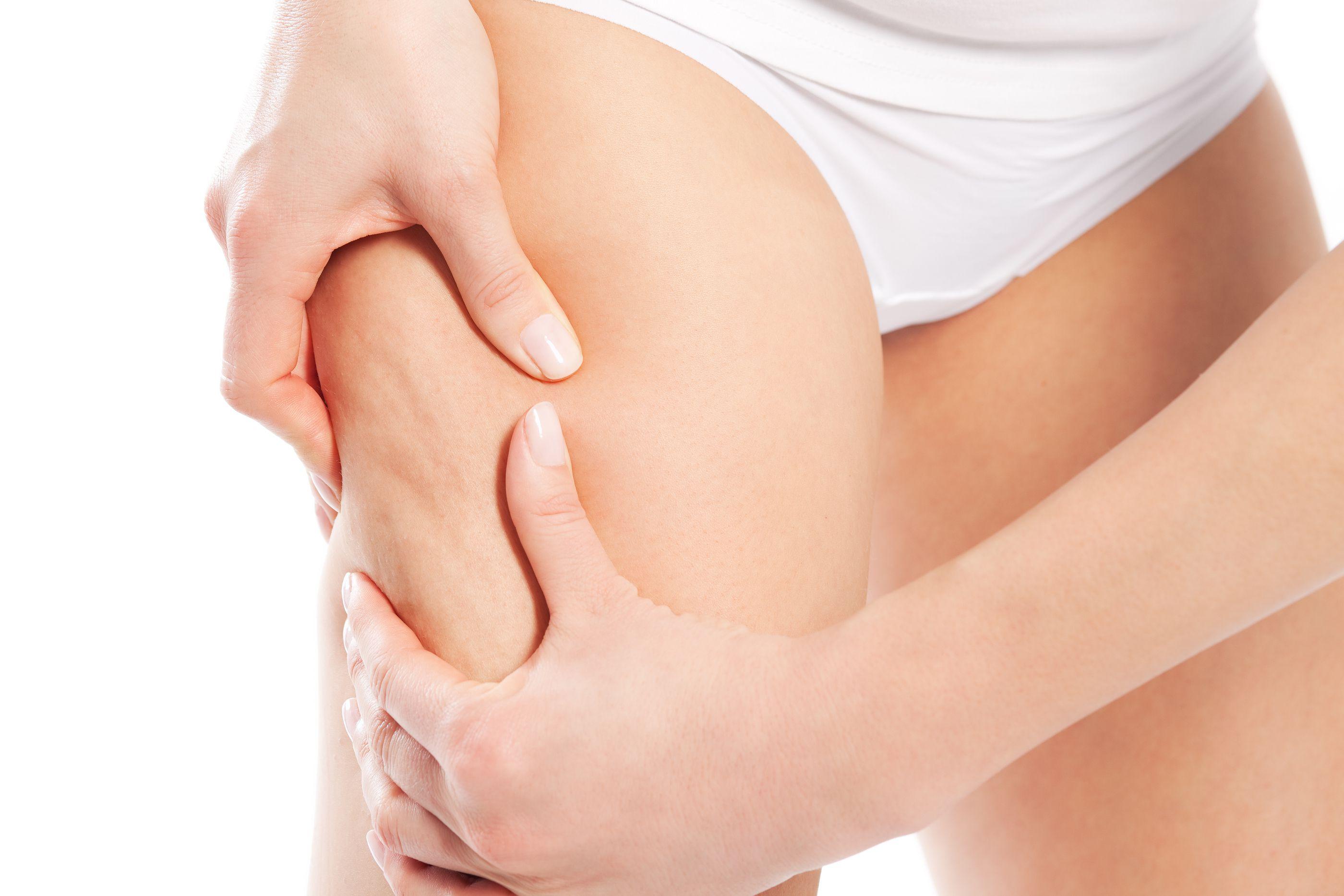 cellulite (2)