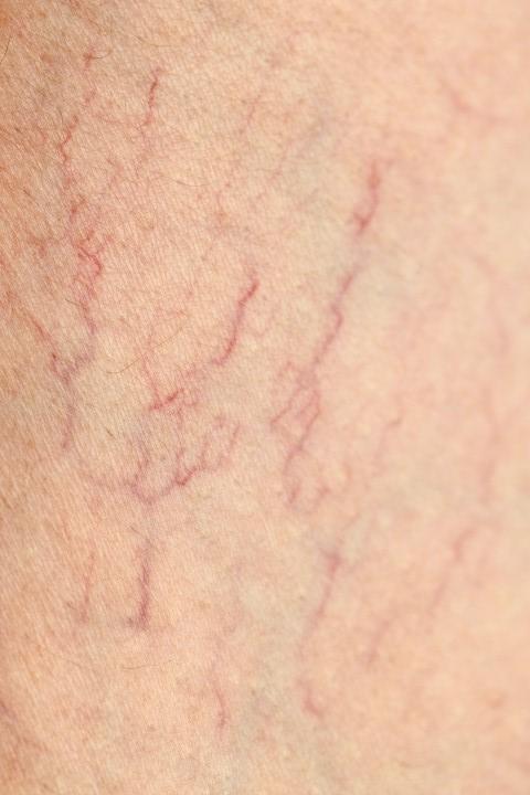 žile krčne (Small)